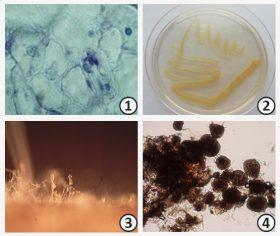 Возбудитель болезни - Представители систематических категории<br />возбудителей болезней растений