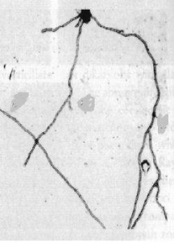 Анастомозы гиф - Анастомозы гиф