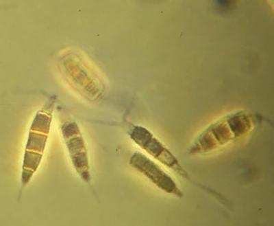 Конидия - Конидии <i>Pestalotiopsis guepinii</i>