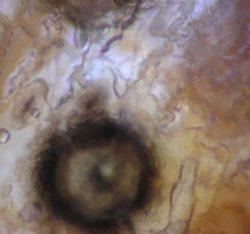 Пикнида - Пикнида <i>Stenocarpella macrospora</i>