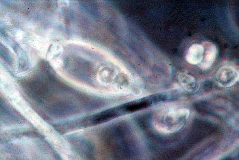 Зооспора - Зооспоры Phytophthora infestans