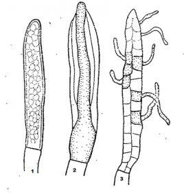 Зооспорангий - Зооспорангии семейства Сапролегниевые <i>(Saprolegniaceae)</i>