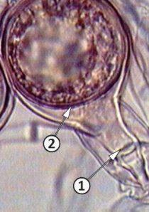 Антеридий - Антеридий Phytophthora alni