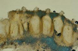 Перитеций - Вертикальный участок стромы и погруженные перитеции Hypocrea citrina