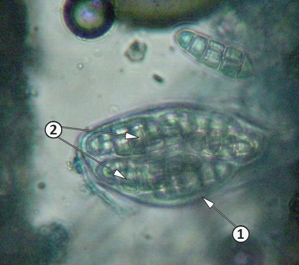 Аскоспора - Аск Leptosphaerulina trifolii