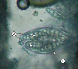 Аскоспора - Аск <i>Leptosphaerulina trifolii</i>