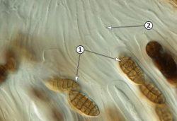 Псевдопарафизы - Вертикальное сечение псевдотеции гриба рода Pleospora
