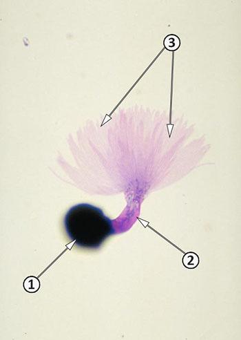Покоящиеся споры - Проросшая телиоспора <i>Tilletia indica</i>
