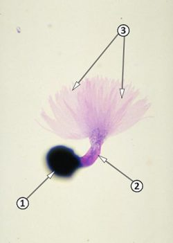 Покоящиеся споры - Проросшая телиоспора Tilletia indica