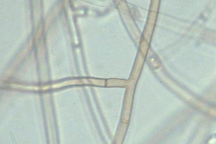 Гифа - Гифы <i>Rhizoctonia solani</i>