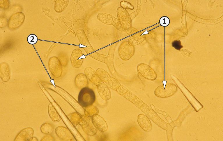 Анаморфа - Анаморфа Podosphaera xanthii