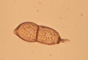 Телиоспора - Телиоспора <i>Puccinia pelargonii-zonalis</i>