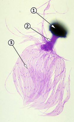 Телиостадия - Проросшая телиоспора <i>Tilletia indica</i>