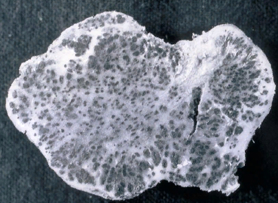 Спорокучка - Спорокучки <i>Thecaphora solani</i> в клубне картофеля