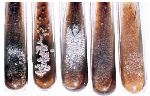 Бесполое спорообразование - Культура бактерии <i>Streptomyces scabiei</i>