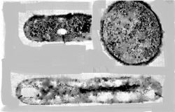 Метилотрофы - Ультратонкие срезы бактериальных клеток