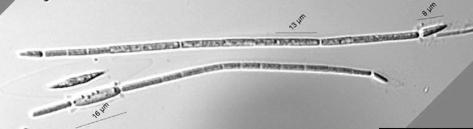 Фототрофы - Цианобактерии  <i>Cylindrospermopsis raciborskii</i>