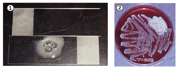 Оксиредуктазы - Выявление бактериальной каталазы