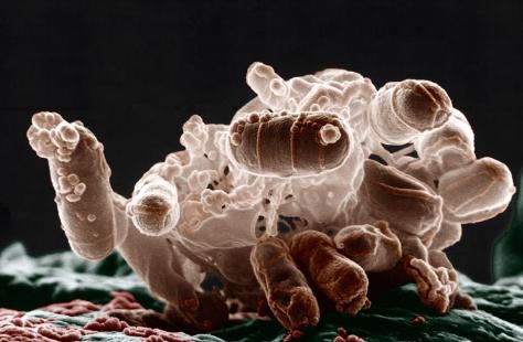 Мезофилы - Кишечная палочка <i>(Escherichia coli)</i>
