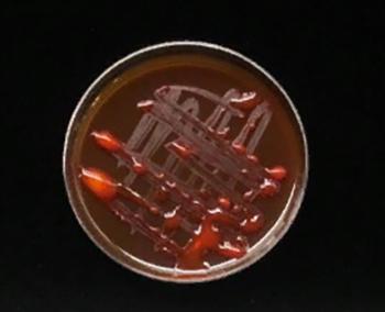 Питательная среда - Культура бактерии <i>Xanthomonas axonopodis</i>