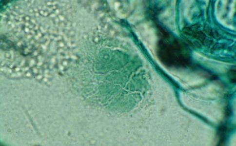 Вирус - Вирус табачной мозаики <i>(Tobacco mosaic virus)</i>