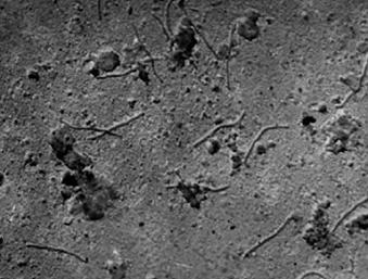 Электронная микроскопия - Вирусные частицы (с напылением)
