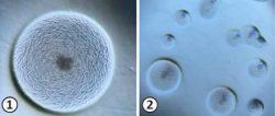 Фитоплазмы - Колонии фитоплазмы под оптическим микроскопом: