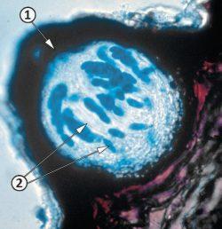 Аск - Перитеция <i>Phyllosticta ampelicida</i>