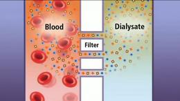 Детоксикация - Процедура гемодиализа