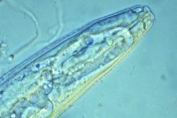 Нематоды галловые (галлообразующие) - Самец Meloidogyne incognita