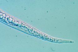 Нематоды галловые (галлообразующие) - Meloidogyne mayaguensis –</p> представитель семейства Meloidogynidae
