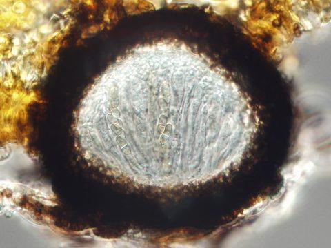 <i>Venturia inaegualis</i> - Вертикальный разрез созревающего псевдотеция с небольшим количеством зрелых аскоспор