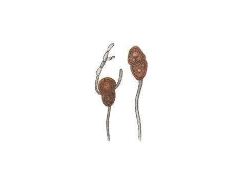 <i>Gymnosporangium tremelloides</i> Hartig. - Телейтоспоры