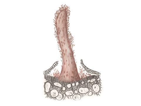 <i>Gymnosporangium tremelloides</i> Hartig. - Столбик из телейтоспор на можжевельнике