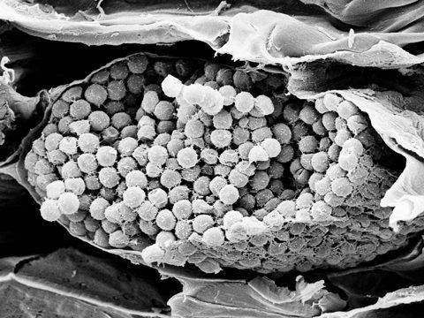 <i>Plasmodiophora brassicae</i> Woronin.