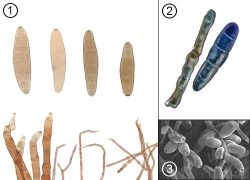 <i>Drechslera</i> - Спороношение грибов рода <i>Drechslera</i>