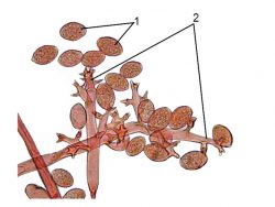 <i>Plasmopara</i> - Спороношение P. viticola
