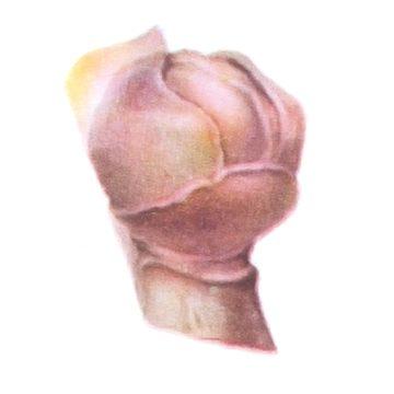 Клещ смородинный почковый - Поврежденный бутон. Использовано изображение: