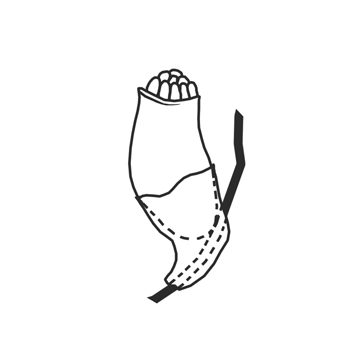 Вошь лобковая - Яйцо (гнида). Использовано изображение: