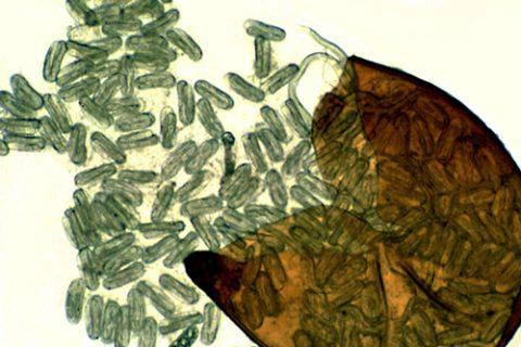 Нематода картофельная золотистая - Выход личинок из цисты. Использовано изображение: