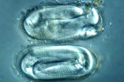 Нематода картофельная золотистая - Личинки первого возраста внутри яиц. Использовано изображение: